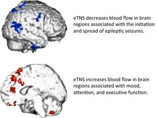 NeuroSigma TNS
